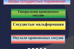 gavelya-03