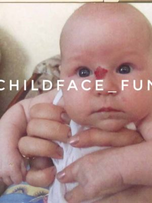 Детская гемангиома — не опухоль, а всего лишь аномалия развития мелких сосудов